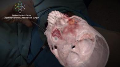 Photo of Israel realiza la primera cirugía con realidad aumentada
